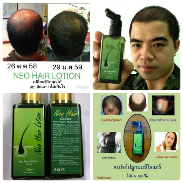 Neo Hair Lotion by Green Wealth